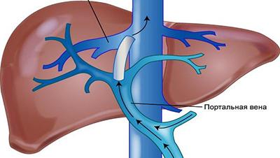 Анализы гепатит инвитро