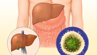 Картинка-анонс к статье Отзывы о том, как лечить гепатит С