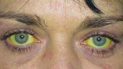 Через сколько проявляется гепатит после заражения в анализах